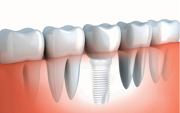 dental implants Herndon VA