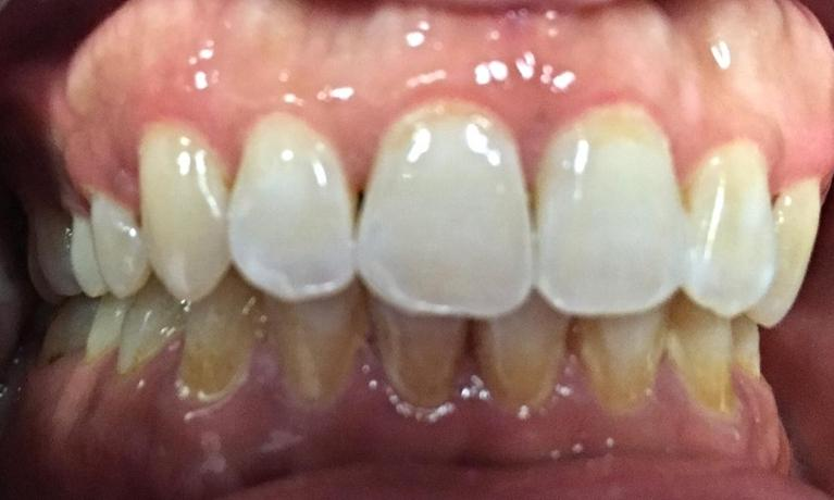 Herndon-Dentist-Cleaning-Before-Image